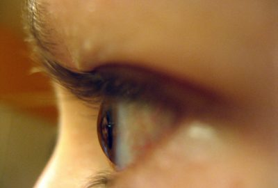 voordelen ooglidcorrectie